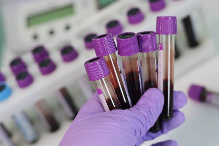A close up of a hand in a purple glove holding five blood vials with purple caps for an ingredient trend article on blood themed consumer products